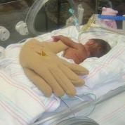 Лечение инсульта у новорожденных